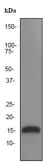 Western blot - Anti-Lysozyme antibody [EPR2995] (ab91653)