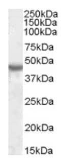 Western blot - Anti-KCNJ1 antibody (ab92285)