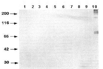 Western blot - Anti-Haploid sperm cell-specific antigen antibody [TRA54] (ab92286)