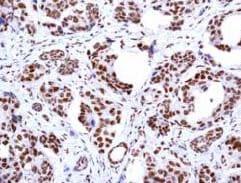 Immunohistochemistry (Formalin/PFA-fixed paraffin-embedded sections) - Anti-PRMT1 antibody [EPR3292] (ab92299)