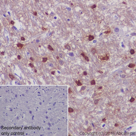 Immunohistochemistry (Formalin/PFA-fixed paraffin-embedded sections) - Anti-TPPP antibody [EPR3316] (ab92305)