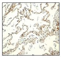 Immunohistochemistry (Formalin/PFA-fixed paraffin-embedded sections) - Anti-SREC-I antibody [EPR3848] (ab92308)