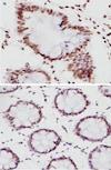 Immunohistochemistry (Formalin/PFA-fixed paraffin-embedded sections) - Anti-MLH1 antibody [EPR3894] (ab92312)