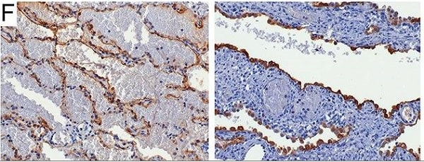 Immunohistochemistry (Formalin/PFA-fixed paraffin-embedded sections) - Anti-Aquaporin 5 antibody [EPR3747] (ab92320)
