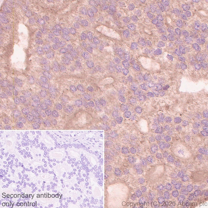 Immunohistochemistry (Formalin/PFA-fixed paraffin-embedded sections) - Anti-TMPRSS2 antibody [EPR3861] (ab92323)