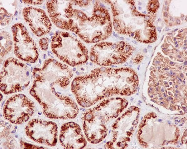 Immunohistochemistry (Formalin/PFA-fixed paraffin-embedded sections) - Anti-TNFAIP3 antibody [EPR2663] (ab92324)