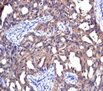 Immunohistochemistry (Formalin/PFA-fixed paraffin-embedded sections) - Anti-NM23A antibody [EPR3036] (ab92327)