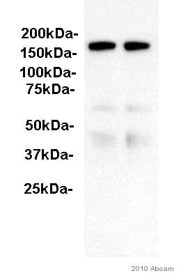 Western blot - Anti-ITIH4 antibody (ab92338)