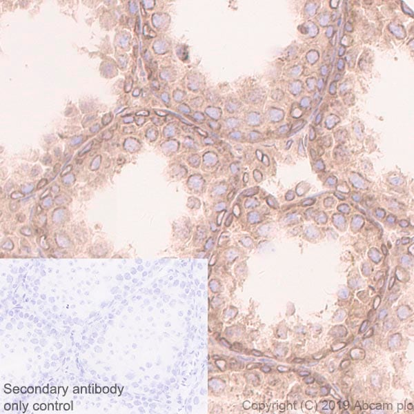 Immunohistochemistry (Formalin/PFA-fixed paraffin-embedded sections) - Anti-RanGAP1 antibody [EPR3295] (ab92360)