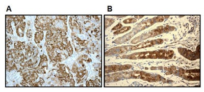 Immunohistochemistry (Formalin/PFA-fixed paraffin-embedded sections) - Anti-Estrogen Inducible Protein pS2 antibody [EPR3972] (ab92377)