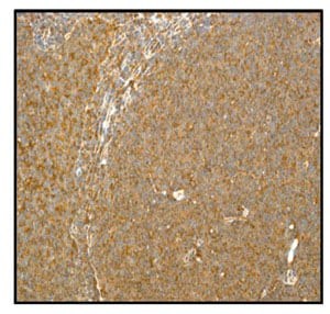Immunohistochemistry (Formalin/PFA-fixed paraffin-embedded sections) - Anti-IL-2 antibody [EPR2780] (ab92381)