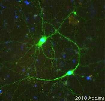 Immunocytochemistry/ Immunofluorescence - Anti-Nestin antibody - Neural Stem Cell Marker (ab92391)
