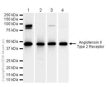 Western blot - Anti-Angiotensin II Type 2 Receptor antibody [EPR3876] (ab92445)