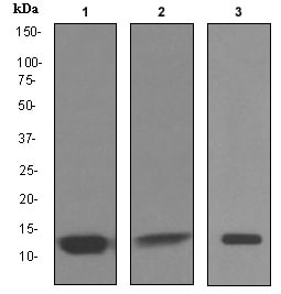 Western blot - Anti-Cystatin-B antibody [EPR3931] (ab92449)