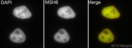 Immunocytochemistry/ Immunofluorescence - Anti-MSH6 antibody [EPR3945] (ab92471)