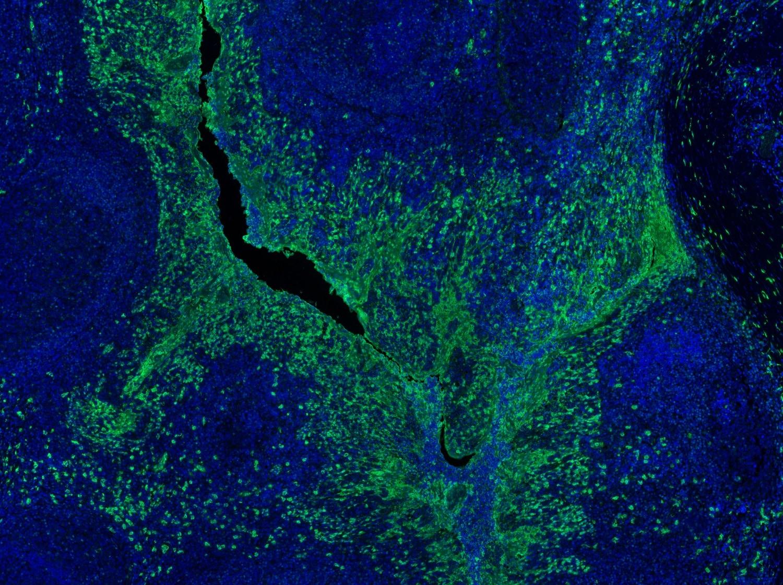 Immunohistochemistry (Formalin/PFA-fixed paraffin-embedded sections) - Anti-S100A9 antibody [EPR3555] (ab92507)