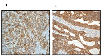 Immunohistochemistry (Formalin/PFA-fixed paraffin-embedded sections) - Anti-delta 1 Catenin/CAS antibody [EPR357(2)] (ab92514)