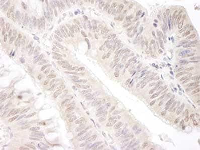 Immunohistochemistry (Formalin/PFA-fixed paraffin-embedded sections) - Anti-Gemin 4 antibody (ab92535)