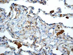 Immunohistochemistry (Formalin/PFA-fixed paraffin-embedded sections) - Anti-LRP1 antibody [EPR3724] (ab92544)