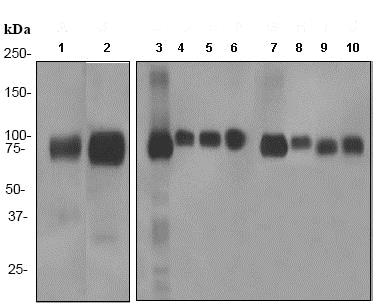 Western blot - Anti-LRP1 antibody [EPR3724] (ab92544)