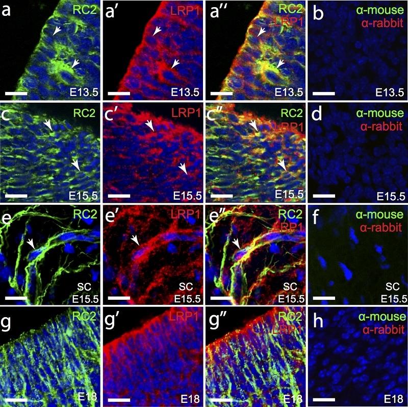 免疫组化(冰冻切片)抗LRP1抗体[EPR324](AB92544)