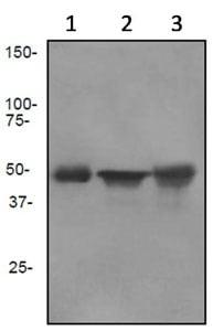 Western blot - Anti-Cytokeratin 13 antibody [EPR3671] (ab92551)