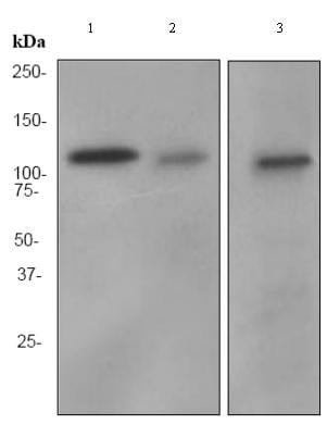 Western blot - Anti-Fibrinogen alpha chain antibody [EPR2919] (ab92572)