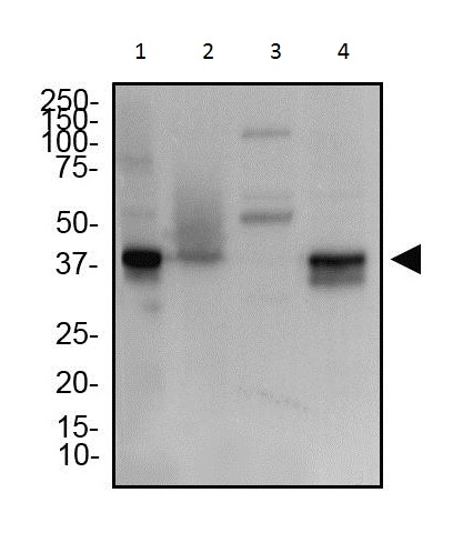 Western blot - Anti-TMEM173 antibody (ab92605)