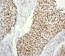 Immunohistochemistry (Formalin/PFA-fixed paraffin-embedded sections) - Anti-Histone H3.3 (phospho S31) antibody [EPR1873] (ab92628)