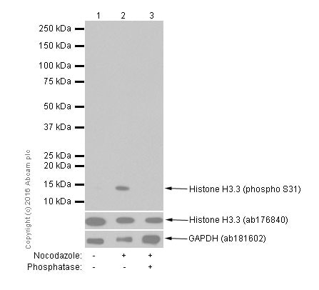 Western blot - Anti-Histone H3.3 (phospho S31) antibody [EPR1873] (ab92628)