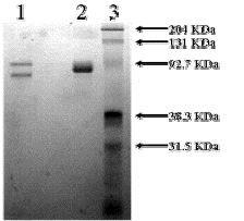 SDS-PAGE - Native Human Vitronectin/S-Protein (Biotin) (ab92639)