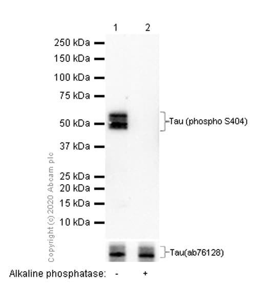 Western blot - Anti-Tau (phospho S404) antibody [EPR2605] (ab92676)