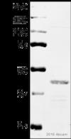 Western blot - Anti-PDHA1 (phospho S293) antibody (ab92696)