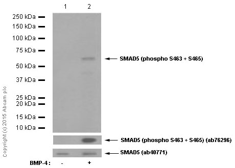 Western blot - Anti-SMAD5 (phospho S463 + S465) antibody [MMC-1-104-3] (ab92698)