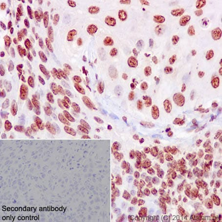 Immunohistochemistry (Formalin/PFA-fixed paraffin-embedded sections) - Anti-Ki67 antibody [EPR3610] (ab92742)