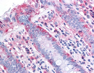 Immunohistochemistry (Formalin/PFA-fixed paraffin-embedded sections) - Anti-CHREBP antibody (ab92809)