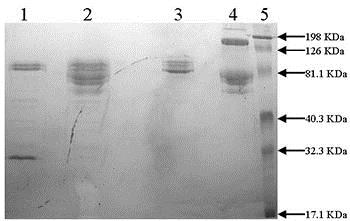 SDS-PAGE - Native rat Plasmin protein (ab92813)