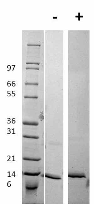 Other - Recombinant human Procalcitonin protein (ab92843)