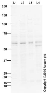 Western blot - Anti-Caspase-10/CASP-10 antibody (ab92844)