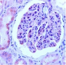 Immunohistochemistry (Formalin/PFA-fixed paraffin-embedded sections) - Anti-Nephrin antibody (ab92887)