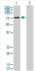 Western blot - Anti-DDX5 antibody (ab92917)