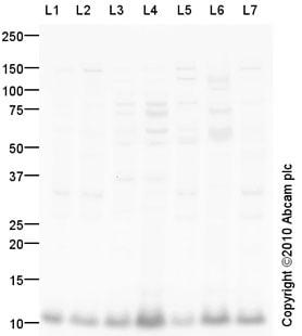 Western blot - Anti-DYNLL1 antibody (ab92936)
