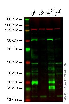 Western blot - Anti-Cathepsin B antibody (ab92955)
