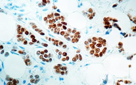 Immunohistochemistry (Formalin/PFA-fixed paraffin-embedded sections) - Anti-Estrogen Receptor alpha antibody [6F11] (ab93021)