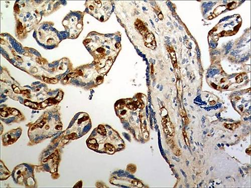 Immunohistochemistry (Formalin/PFA-fixed paraffin-embedded sections) - Anti-CCR6 antibody [MM0066-3L1] (ab93086)