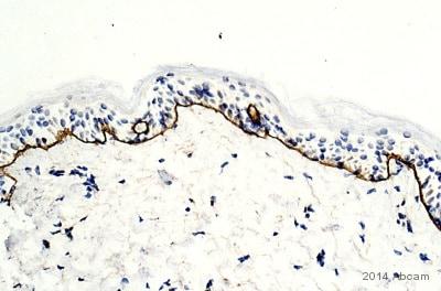 Immunohistochemistry (Formalin/PFA-fixed paraffin-embedded sections) - Anti-Collagen VII antibody (ab93350)