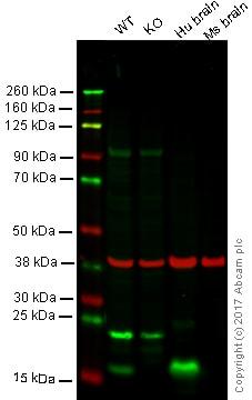 Western blot - Anti-Alpha-synuclein antibody (ab93432)