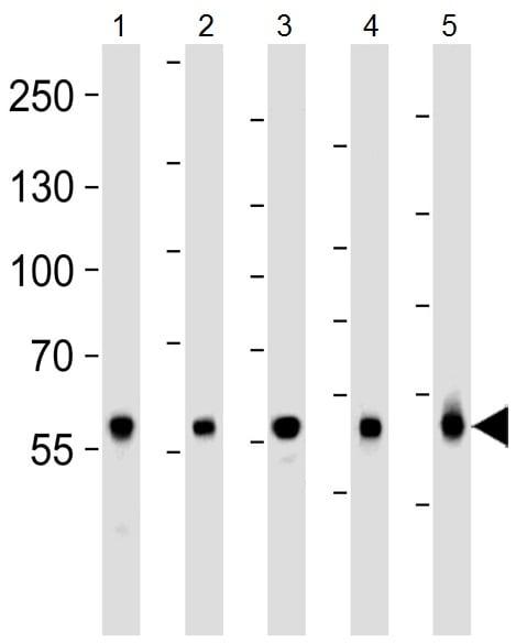Western blot - Anti-Glutaminase antibody (ab93434)