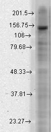 Western blot - Anti-SLICK antibody [N11/33] (ab93602)
