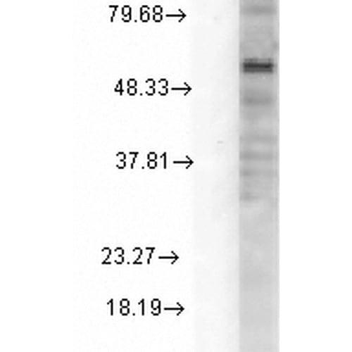Western blot - Anti-GABRD antibody [N151/3] (ab93619)